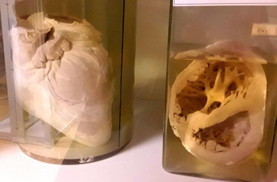 Patologijos muziejus Šiauliuose