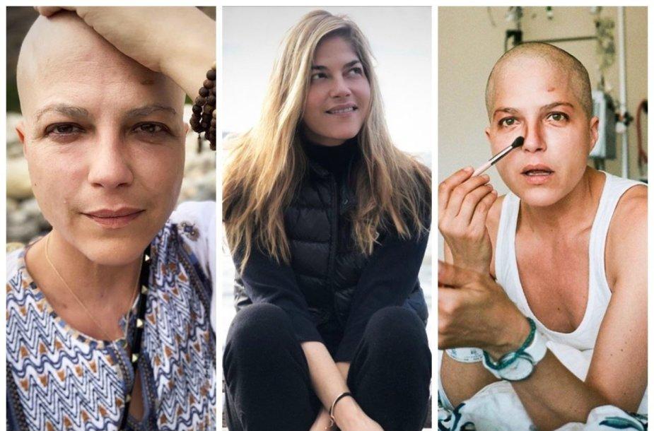 Išsetine skleroze serganti aktorė Selma Blair