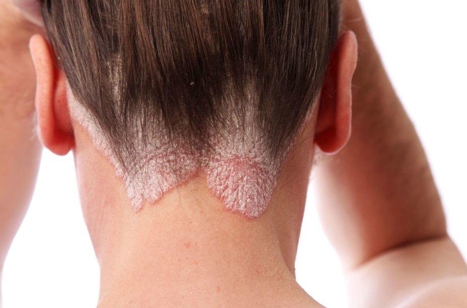 Žvynelinės pažeista oda
