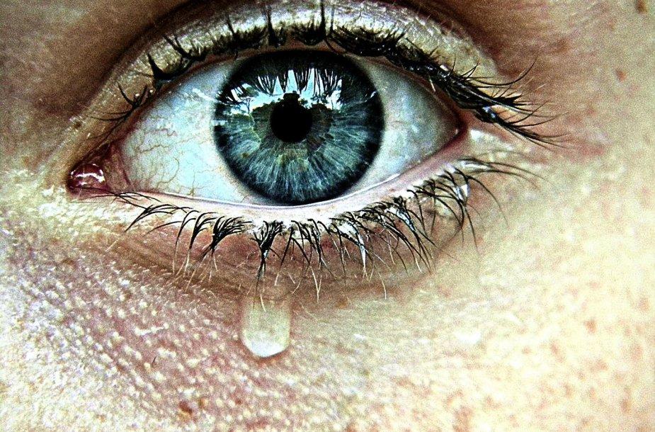 Jei ilgai verkėte...