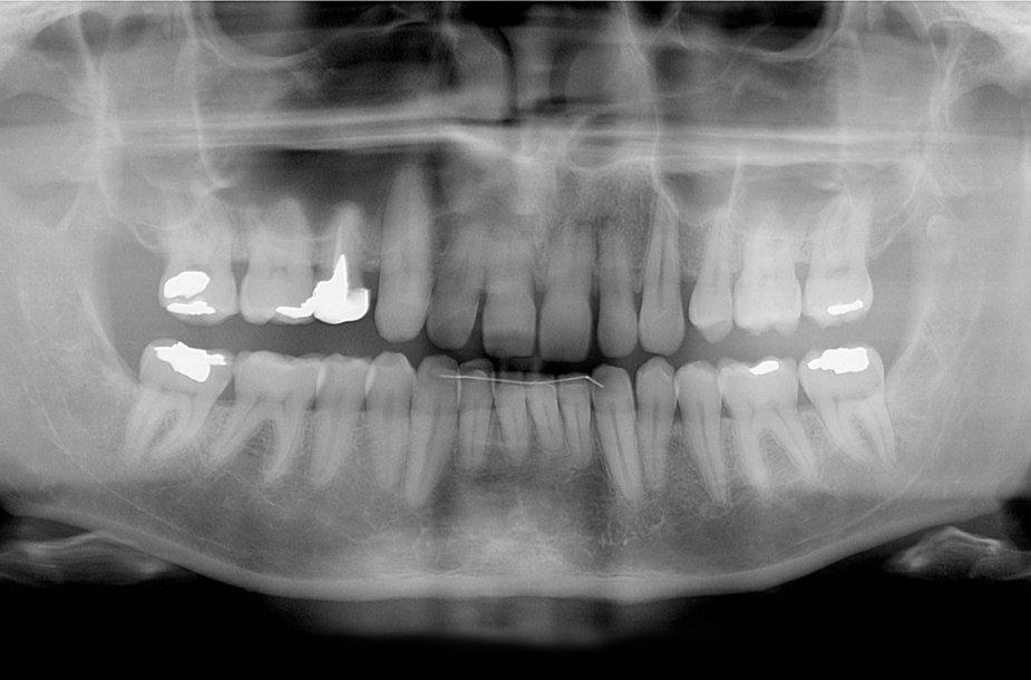 Dantų rentgeno nuotrauka