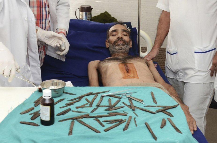 ndijos policininkas per du mėnesius prarijo dešimtis peilių