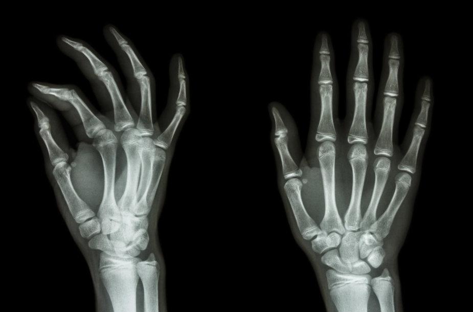 Rankos plaštakos rentgeno nuotrauka