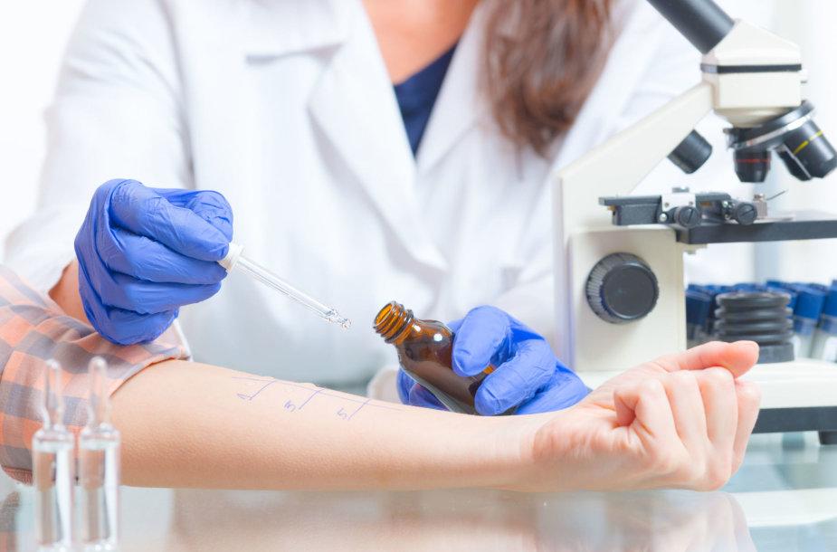 Alergijos testas