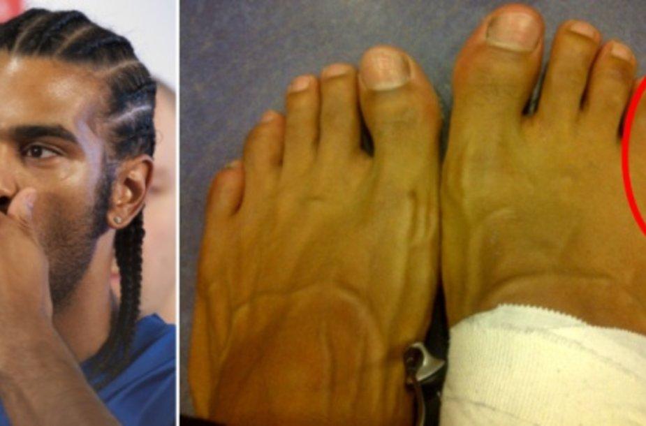 Davidas Haye internete išplatino savo pėdų nuotrauką, kuriame matomas ištinęs pirštas.