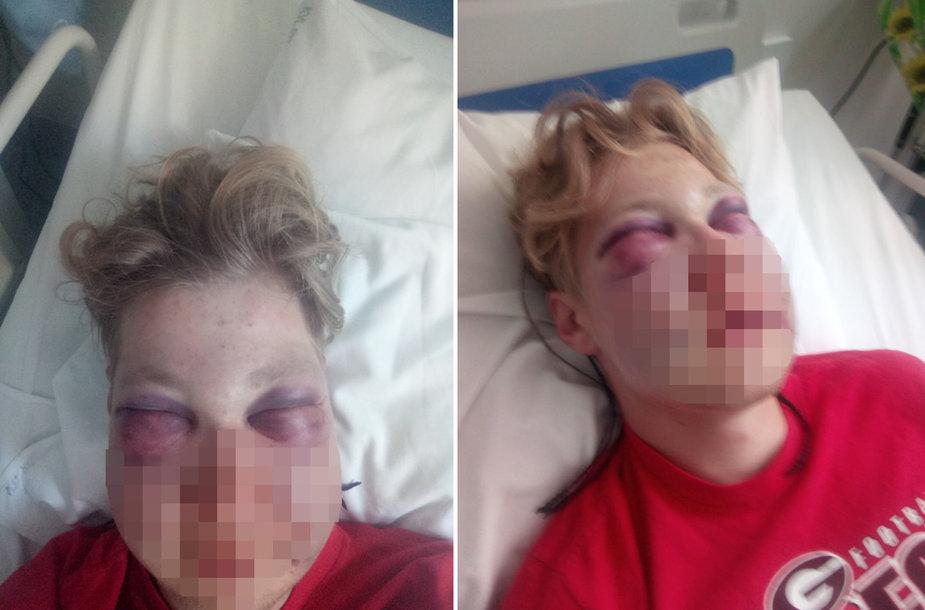 Stipriai sužalotas 17-metis gydomas Klaipėdos vaikų ligoninėje.