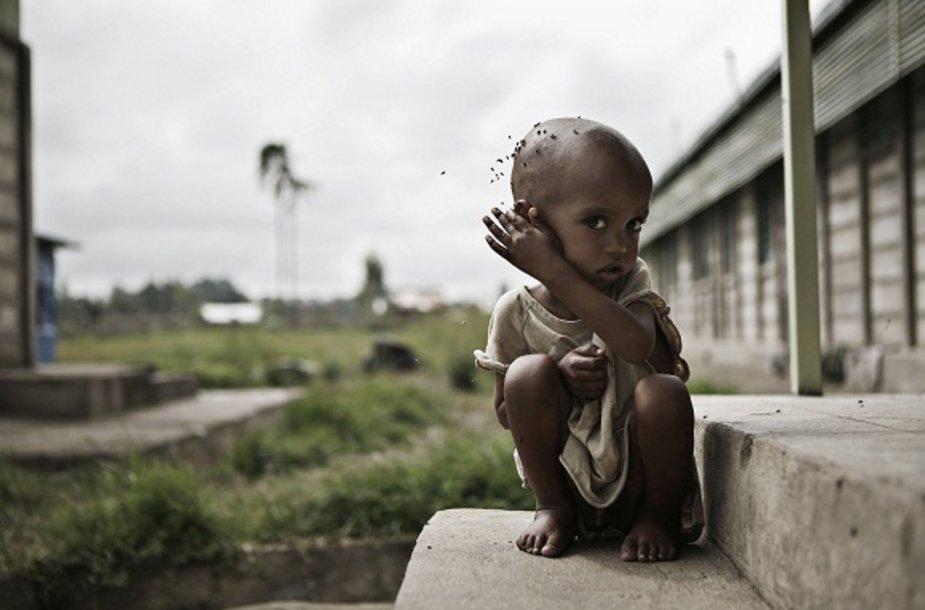 Prognozuojama, kad Nigeryje nuo bado gali mirti 400 tūkst. vaikų