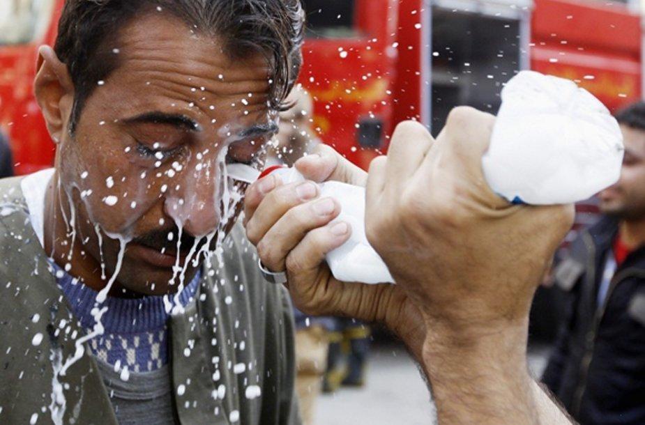 Nuo ašarinių dujų nukentėjusiam vyrui akys plaunamos su pienu.