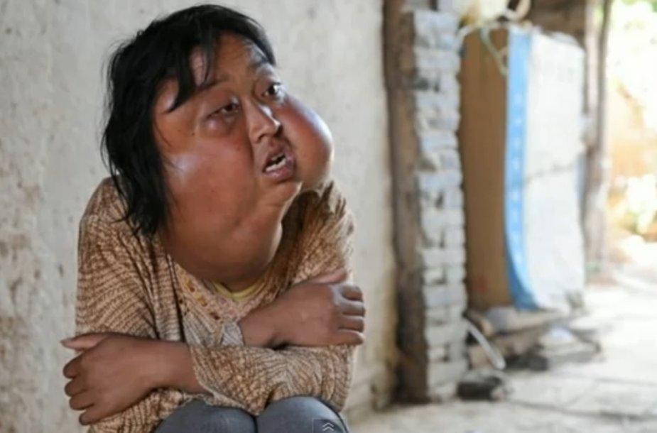 70 auglių ant veido turėjusi kinė Li Hongfang