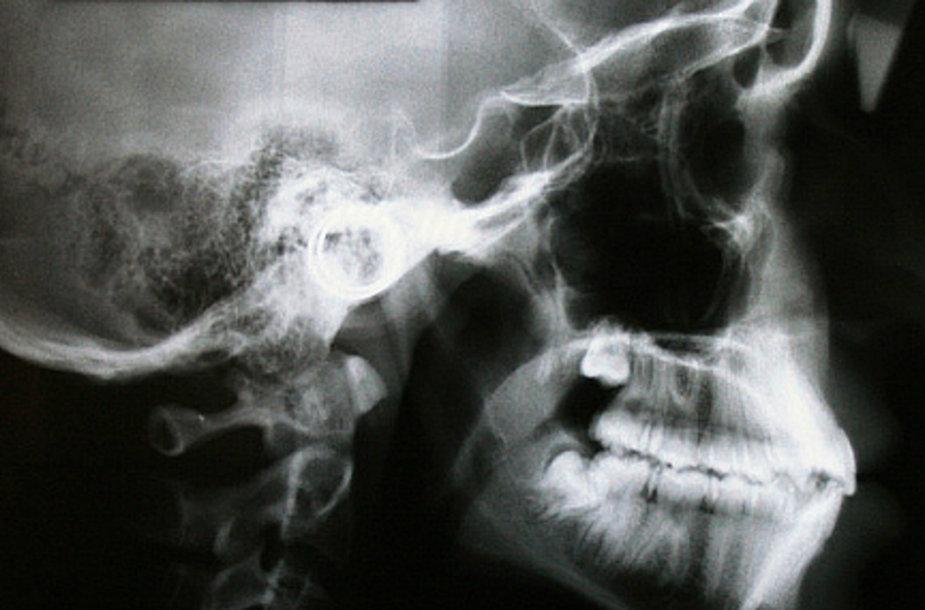 Рентгеновский снимок, на котором видна пуля.