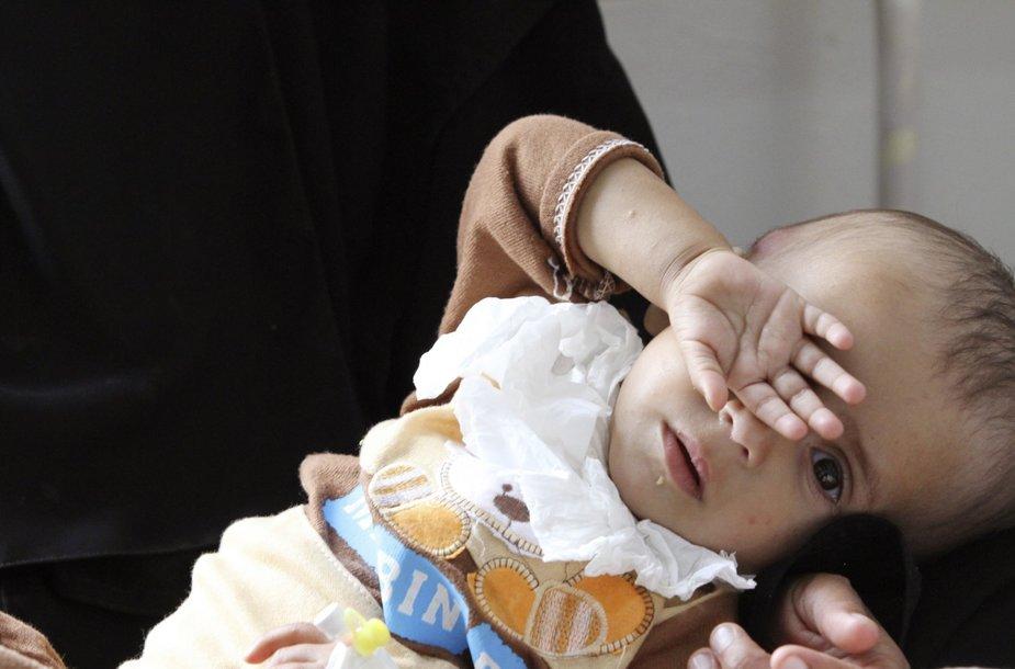 Nuo nepakankamos mitybos kenčiantys vaikai Jemene