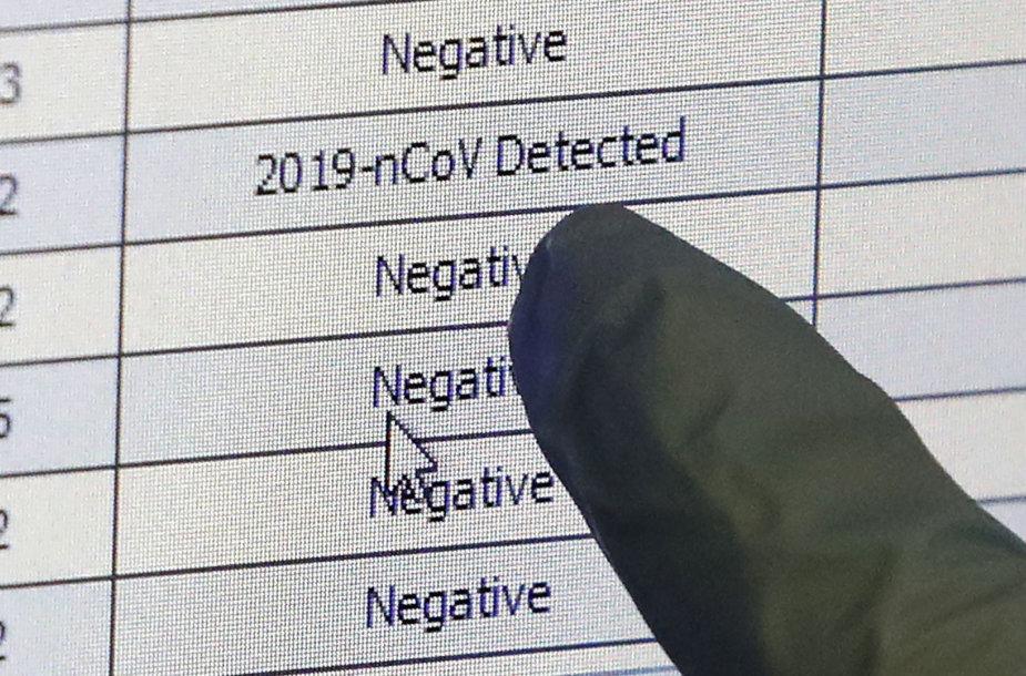 Ar koronavirusą aptinkantys testai pakankamai tikslūs?