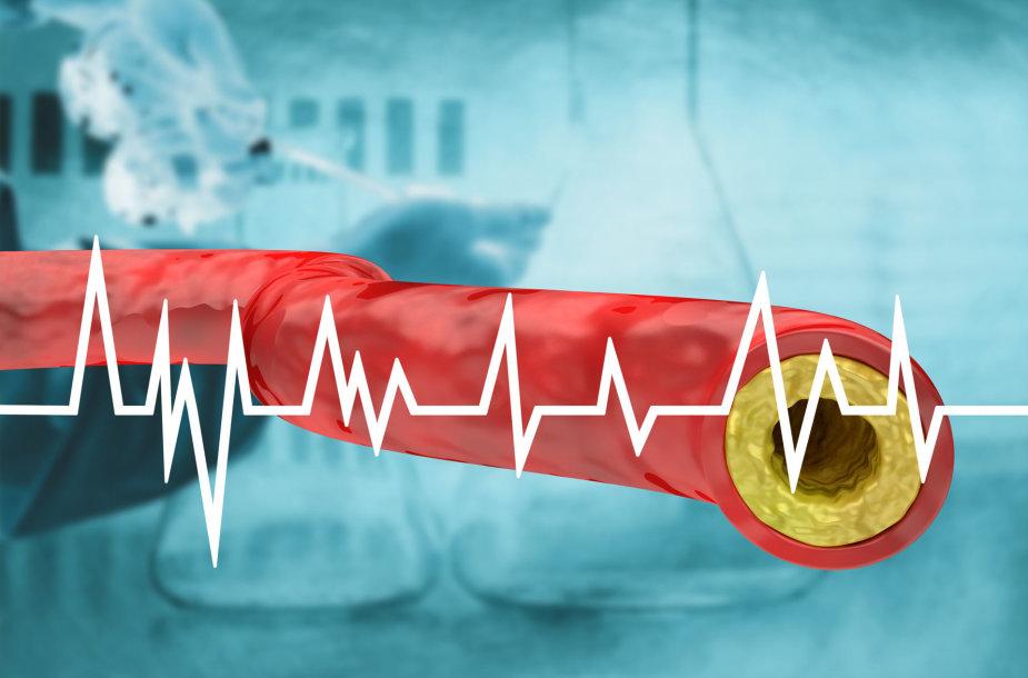 Cholesterolis blogina kraujotaką