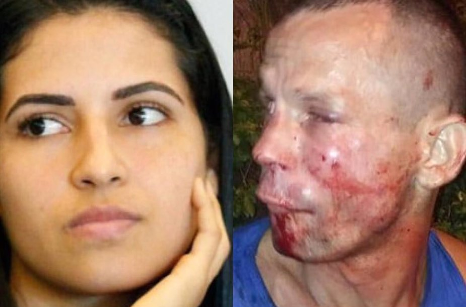 Polyana Viana nepagailėjo savo užpuoliko